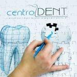 Centrodent - foto puzzle denti