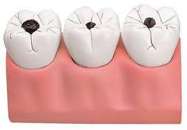Popravak zuba - karijes