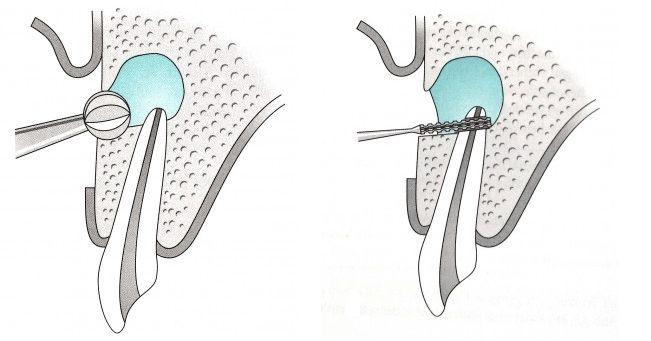apikotomija zuba