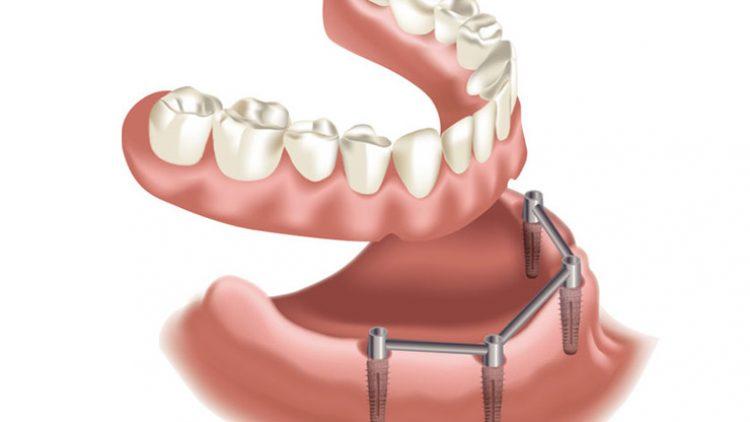 Zubna protetika