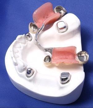 zubne proteze bez nepca -CentroDENT