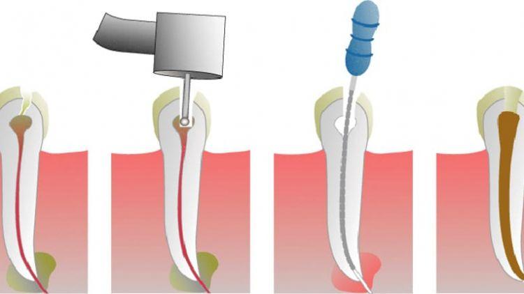 Liječenje zuba