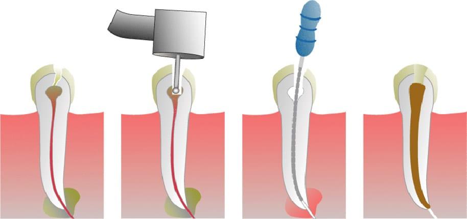 Liječenje upale zuba CentroDENT Rijeka