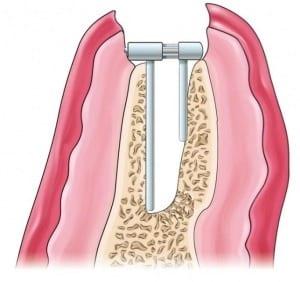 nivelacija alveolarnog grebena