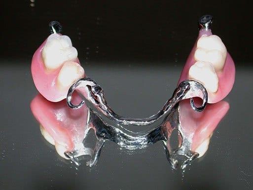 wironit proteza za zube
