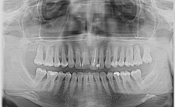 Dental CT-om, kao i postimplantacijska kontrola.