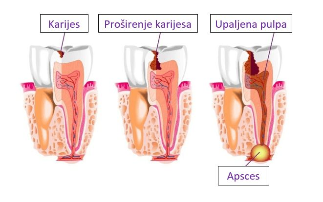 Bolesti zuba i desni