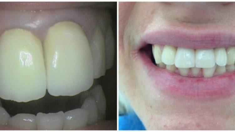 Zubne krunice na implantatima