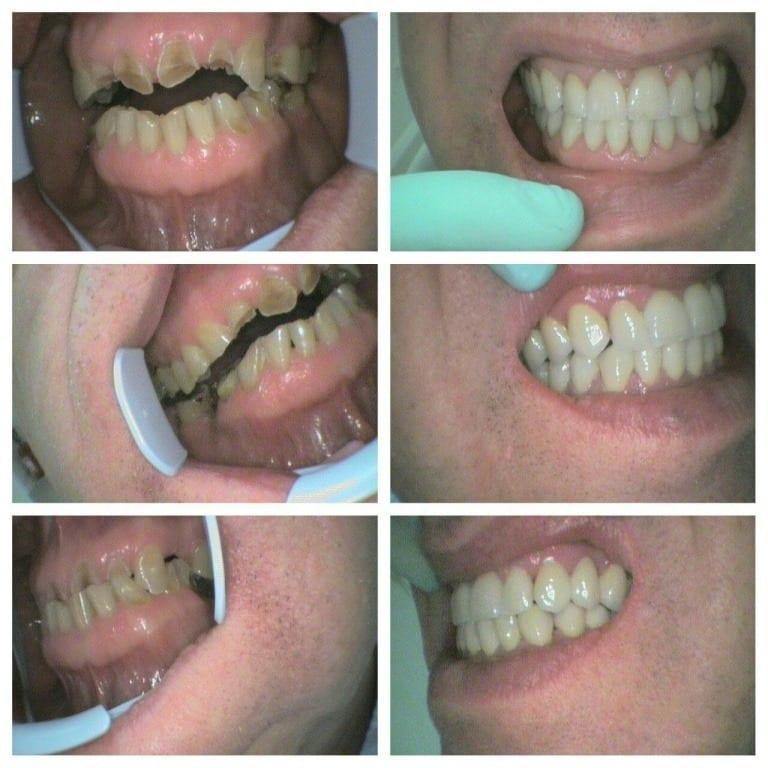 bruksizam ili škrgutanje zubima