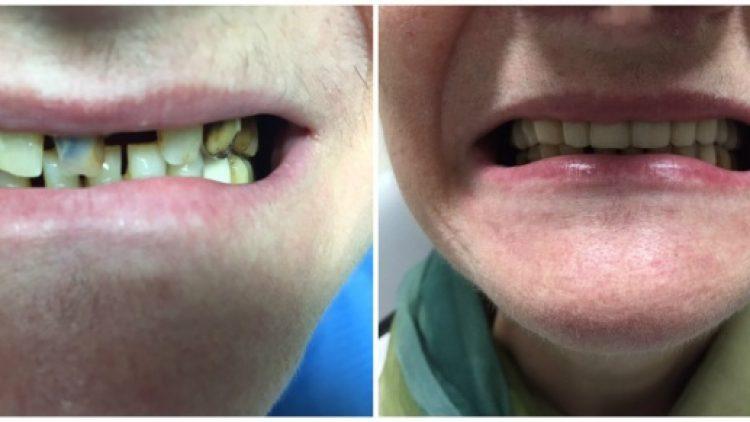 Fiksni rad gornja čeljust – privremeni zubi