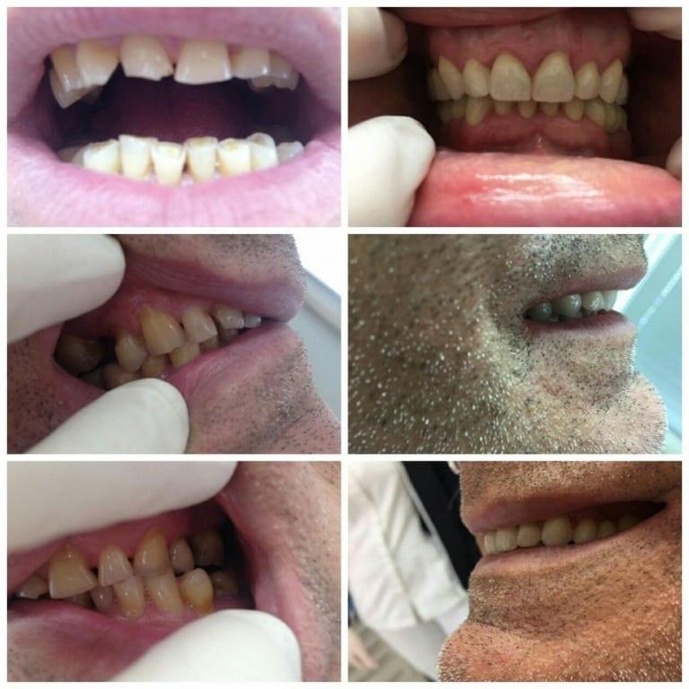 Cirkonski cirkularni zubni most
