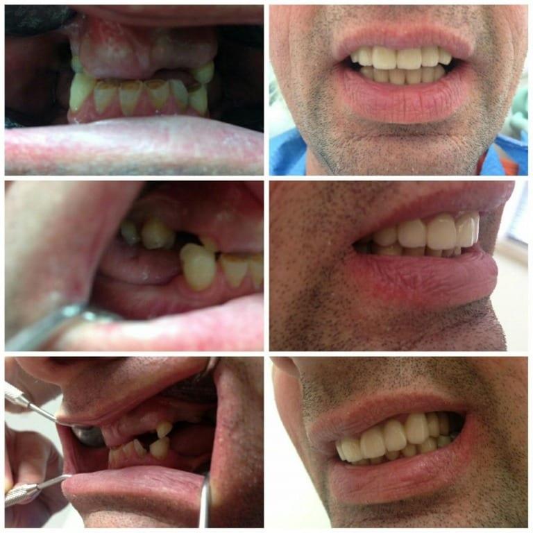 Cirkularni zubni most i kombinirani rad