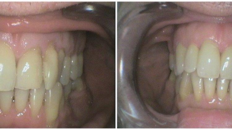 Cirkonske zubne krunice – fronta