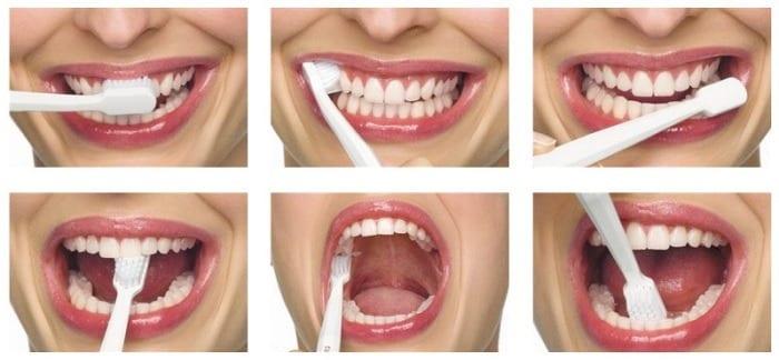 kako ublažiti bolove zuba