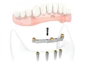 Dentalna prečka