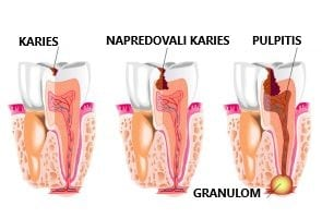 Image result for granulom
