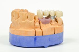 Privremene zubne krunice